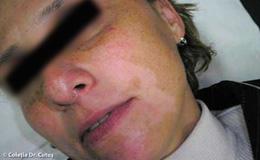 Tratamentul leziunilor pigmentare cu IPL
